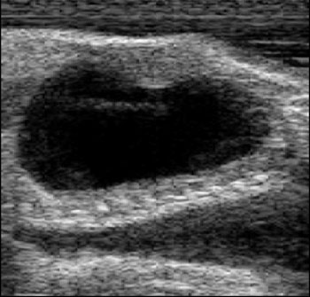 Ultrasound image of neonate Gila monster bladder